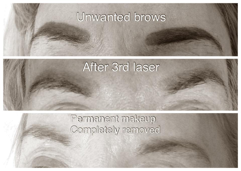 laser-eye-brow-removal-kidderminster-01