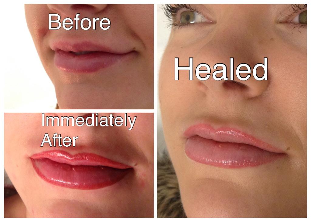 semi-permanent-lip-blush-kidderminster